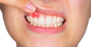 5 Most Common Causes of Gum Bleeding