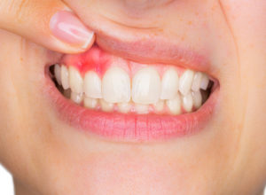 5 Most Common Causes of Gum Bleeding